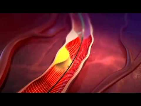 How does the body adapt to starvation? from YouTube · Duration:  14 minutes 56 seconds