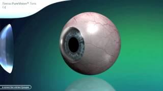 Асферические контактные линзы для коррекции астигматизма компании BAUSCH&LOMB(Ролик рассказывает о линзах компании BAUSCH&LOMB сферических и торических ( для коррекции астигматизма ) которые..., 2014-12-11T14:32:50.000Z)
