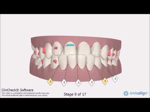 Invisalign Class 3 Before and After