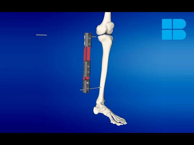 Representación virtual de una cirugía de alargamiento óseo de tibia