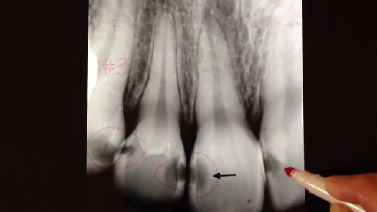 Radiographic Interpretation Of Dental Caries Classification ACJ
