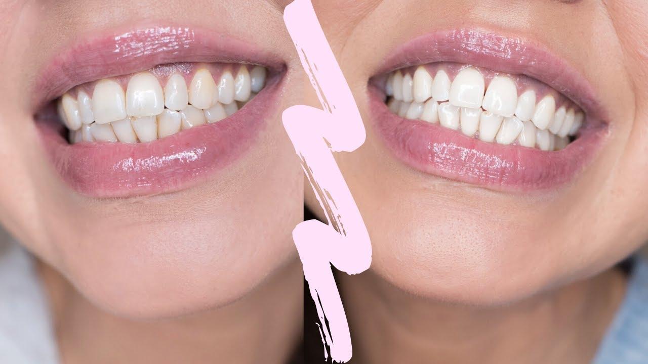 Hampaiden Valkaisu Liuskat
