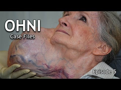 Parotidectomy for Giant Facial Tumor Removal - OHNI Case Files - Episode 5 - Madeline
