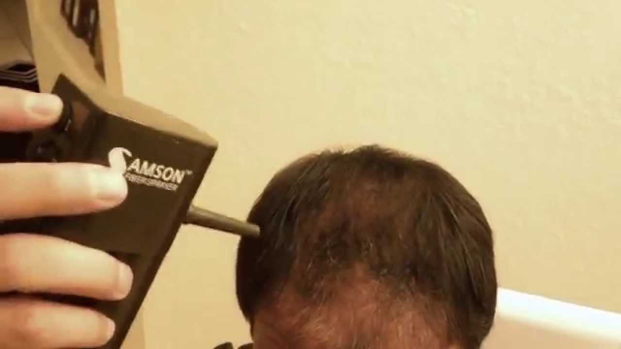 samson hair loss building fibers concealer live