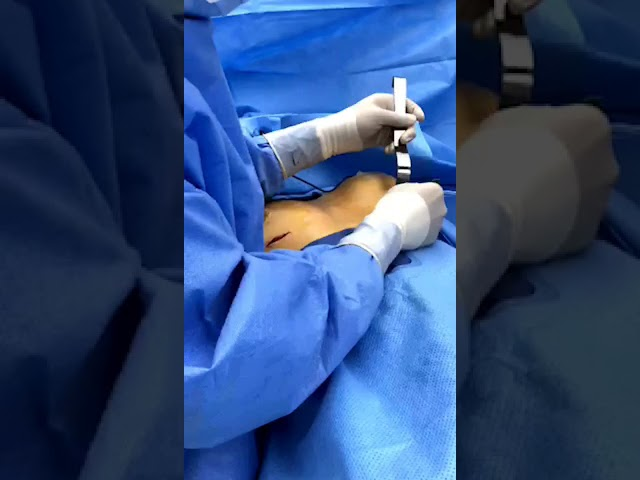 Switching Out Saline Implants for Silicone