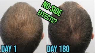 Dutasteride Mesotherapy For Hair Loss Treatment No Side Effects Youtube