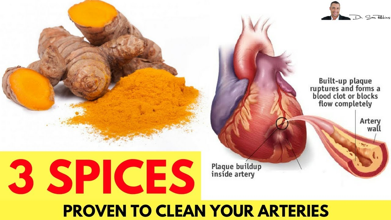 🌿 3 Spices Proven To Cleanse Your Arteries - by Dr Sam Robbins