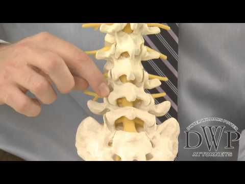 Facet Joint or Whiplash Injuries in Auto Accidents