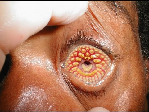 10 Most Horrifying Rare Diseases And Disorders – Most Terrifying Rare Medical Conditions