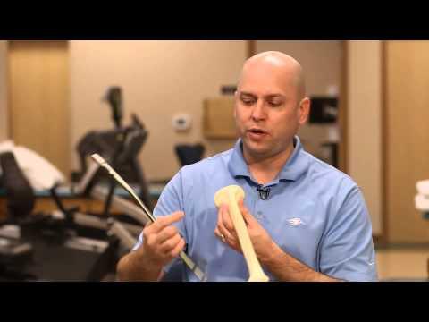 Anderson Silva Injury: Insight on his broken leg (tibia) treatment