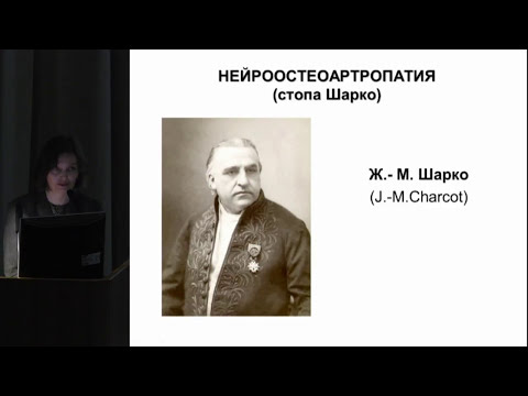 Секционное заседание 10. Комелягина Е.Ю., «Диабетическая остеоартропатия (стопа Шарко): .. »