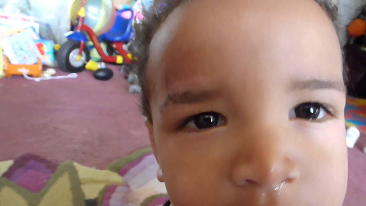 18 3 Month Old Baby Emperor 3 Weeks Using Mederma For Kids Youtube