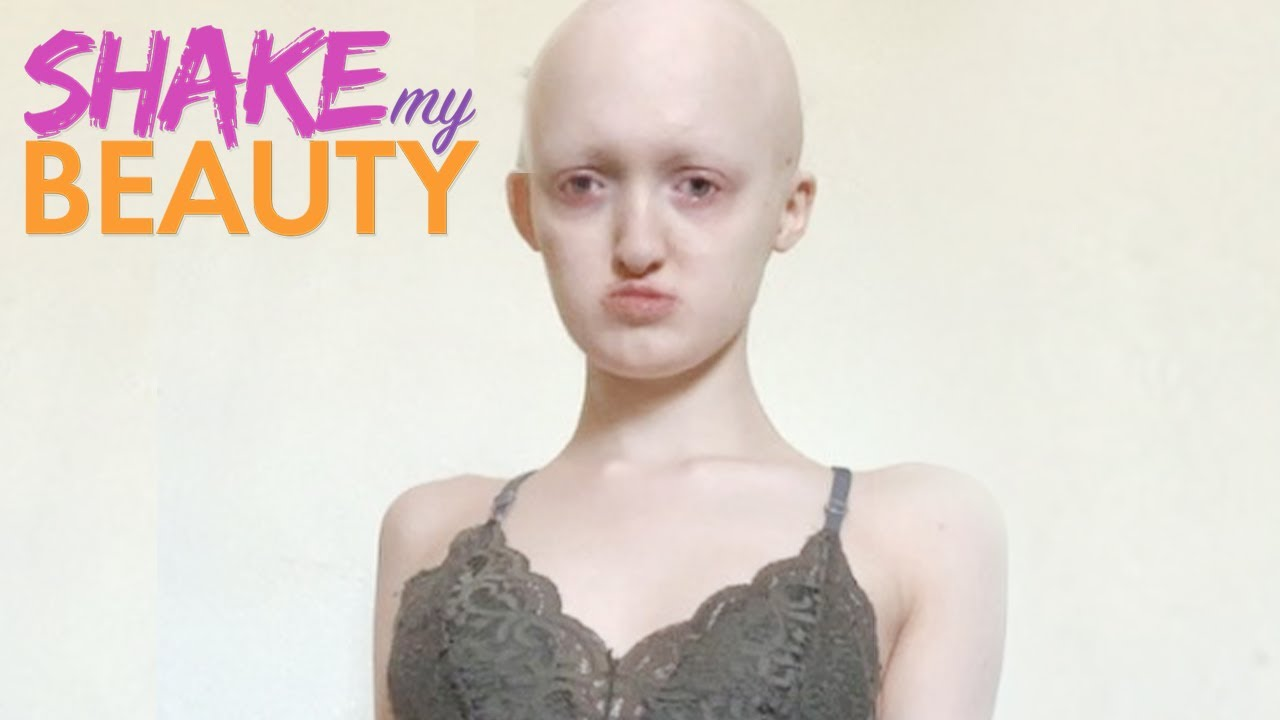 Bullied Because Of My Rare Genetic Condition | SHAKE MY BEAUTY