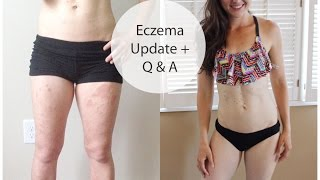 Eczema update - eczema free and answering questions