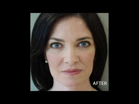 PRP Before and After at Austin Plastic Surgery Institute and Skin Care Clinic in Austin Texas