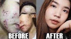 hqdefault - Paano Maalis Ang Pimples