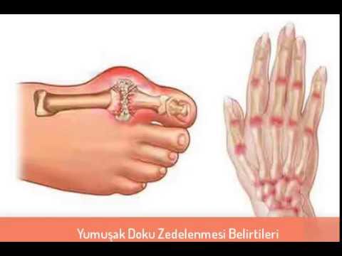 Yumuşak Doku Zedelenmesi Belirtileri Ve Tedavisi Youtube