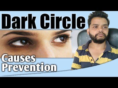 Dark Circle Under Eyes Causes, Treatment In Hindi