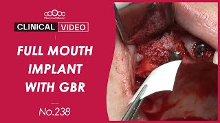 Full mouth implant placement with GBR