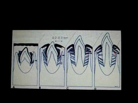 ligamento periodontal unal