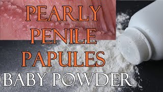 Pearly Penile Papules Baby Powder - Is Baby Powder Safe And Effective