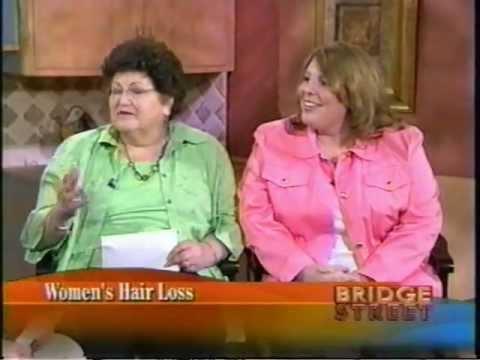Women's Hair Loss. Bridge Street WSYR9 Syracuse NY