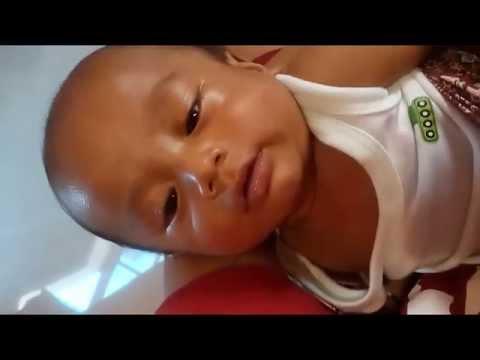 Solusi Bayi Demam Setelah Imunisasi