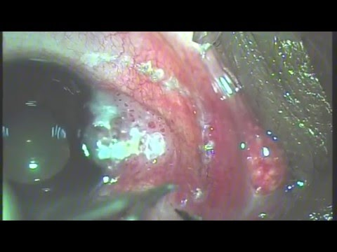 Conjunctival Ocular Surface Squamous Neoplasia (OSSN) Excision - No Touch Technique