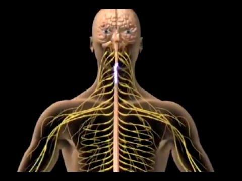 Expertos explicaron qué es la mononeuritis múltiple