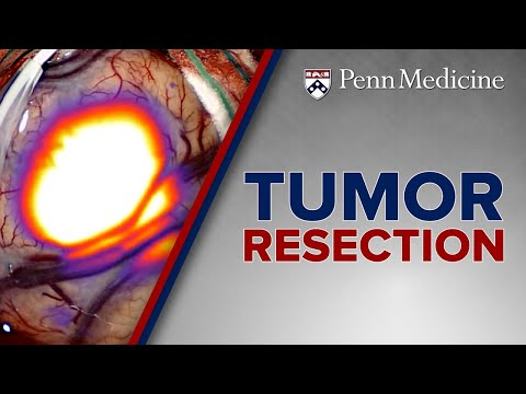 head-and-neck-tumor-resection-at-penn-medicine