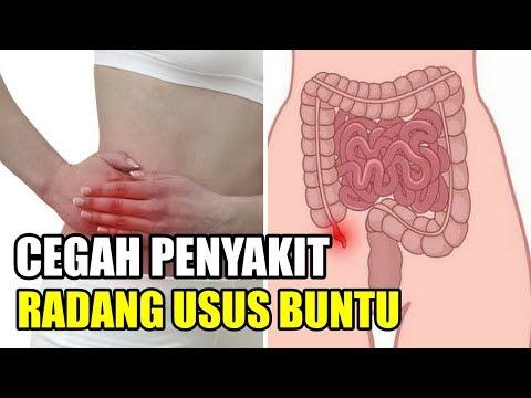 Wajib Tau! 5 Cara Alami Mencegah Penyakit Radang Usus Buntu