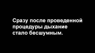 назофаренгеальный полип(, 2016-08-02T18:43:44.000Z)