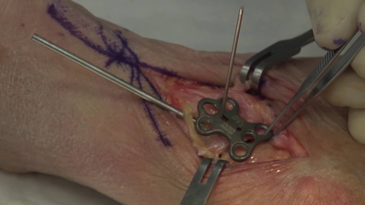 Stryker Foot And Ankle Talo Navicular Fusion Youtube