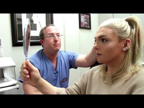 FFS Pre-Op Appointent w/ Dr Spiegel (Facial Feminization Surgery) | Stef Sanjati
