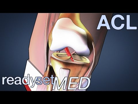 What is the ACL and How Does it Work? - ACL Series
