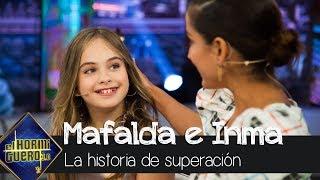La increíble historia de superación de Mafalda Carbonell - El Hormiguero 3.0
