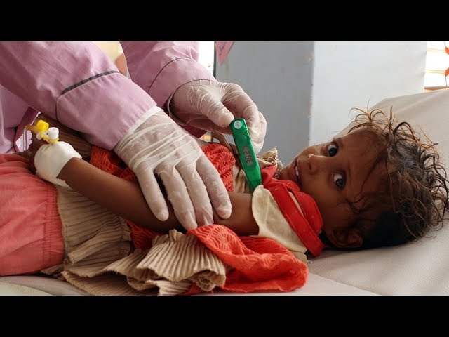 Yemen's Crisis is Far Worse Than We're Told