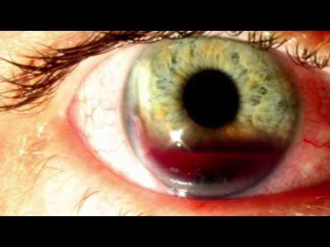 Ophthalmology Spot diagnosis