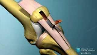 Les ligaments du genou