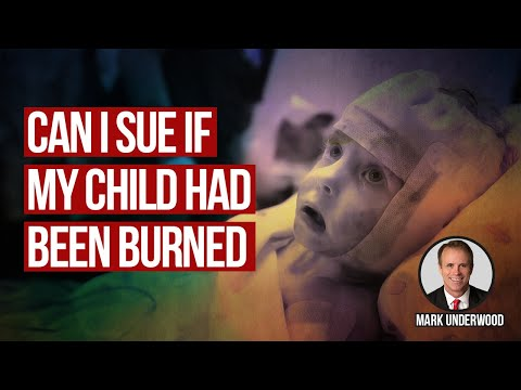 Can I sue if my child has been burned?