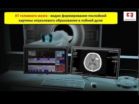 Компьютерная томография (КТ): показания, возможности, принцип работы и виды контрастирования