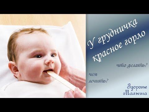 Как лечить горло месячному ребенку
