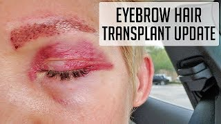 Update on my brow transplant!! Was it PAINFUL?? What about scars??