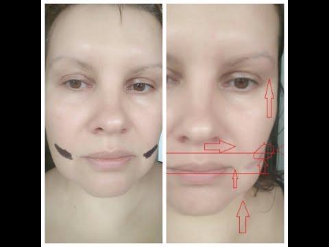 Корсетная лифтинг - маска для лица: подтяжка после 1й процедуры.