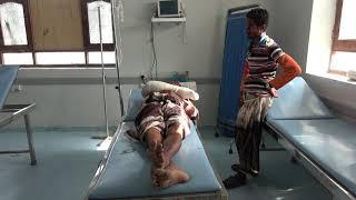 إصابة مواطن برصاص مليشيات الحوثي في قرية السقف بمديرية التحيتا