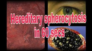 Hereditary Spherocytosis : A 60 sec Pathology lecture