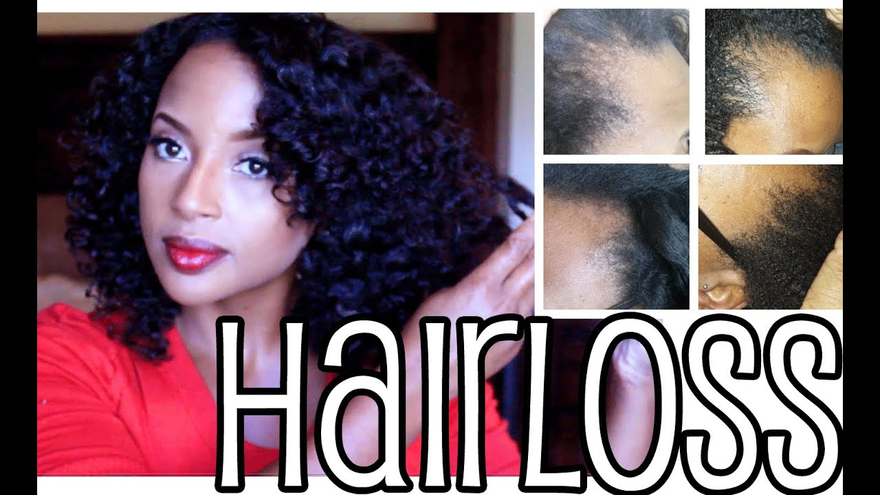 Hairstyles For Natural Hair With Thin Edges