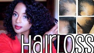 Thinning Edges and Hair Loss remedy ramble