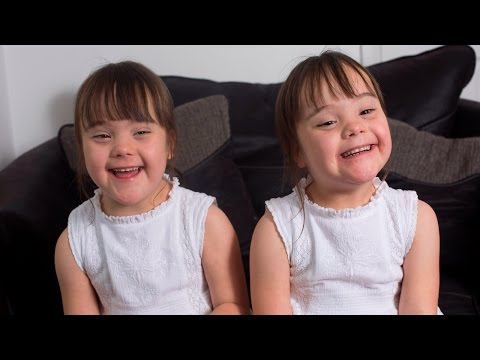 Down's Syndrome Twins Are One In A Million