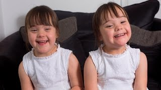 Down's Syndrome Twins Are One In A Million thumbnail